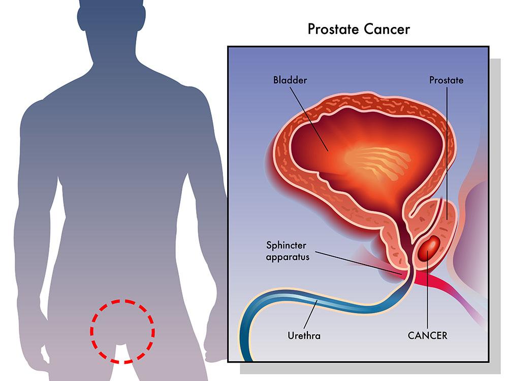 Prostate Cancer - Sunrise Urology